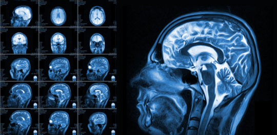 neurologia-neurologo-cassia-la-storta