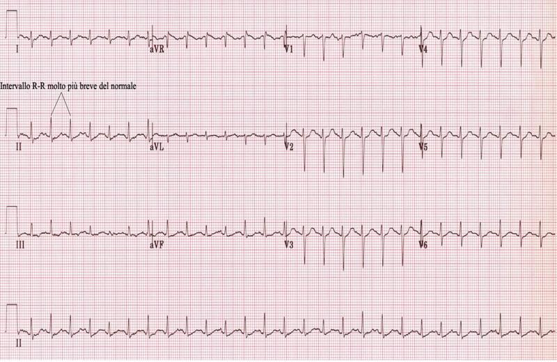 aritmie fibrillazione ipertensione
