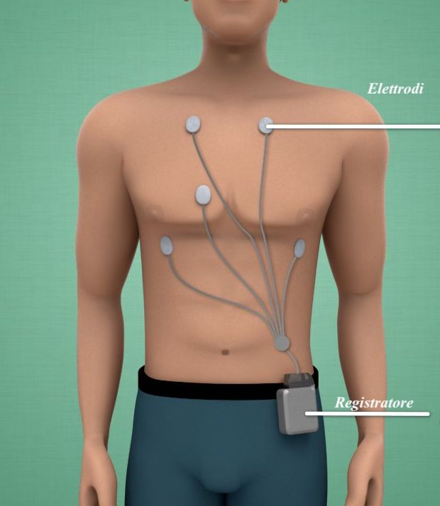 ECG-holter-24-48-ore-via-cassia-la-storta